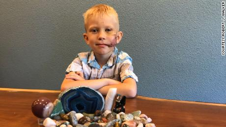 Bridger Walker, de 6 años, salvó a su hermana de un ataque de perro.